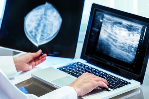 Digital Mammogram Indications | 3D Mammography | Hastings Radiology | Nebraska